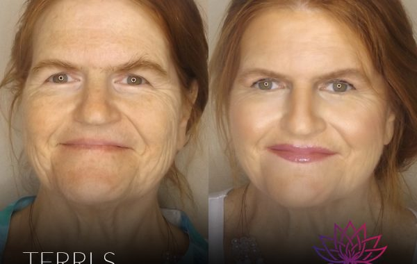 Beauty   Before & After