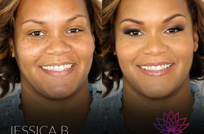 Beauty | Before & After
